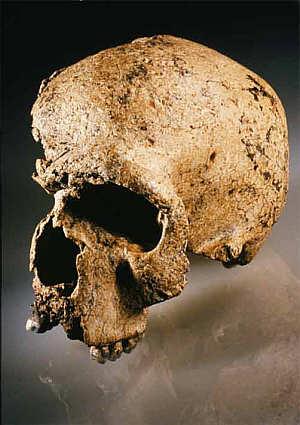 Schädel des Steinheimer Menschen